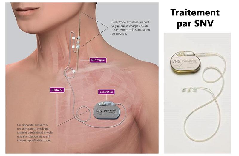 """Résultat de recherche d'images pour """"stimulation nerf vague"""""""